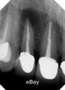 Maxray À Main Dentaire Portable, Médical Et Vétérinaire Mobile X-ray